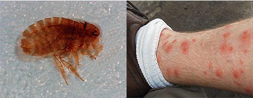 Sandige Flöhe können ernsthafte Gesundheitsschäden verursachen: Was ist die Gefahr dieser Parasiten und wie wir uns vor ihnen schützen können, werden wir weitermachen und reden