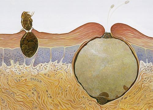 Das Bild zeigt, wie sich eine Sandflohfrau in einem menschlichen Körper verhält.