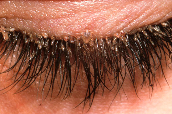 Ein weiteres Beispiel für Läuse befallene Wimpern.