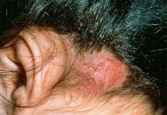 Bei einer großen Anzahl von Läusen auf der Kopfhaut können Schorf auftreten.