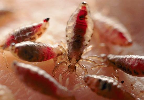 Bei einer großen Anzahl von Läusen bei einem Kind besteht das Risiko, aufgrund eines regelmäßigen Blutverlustes eine Anämie zu entwickeln.