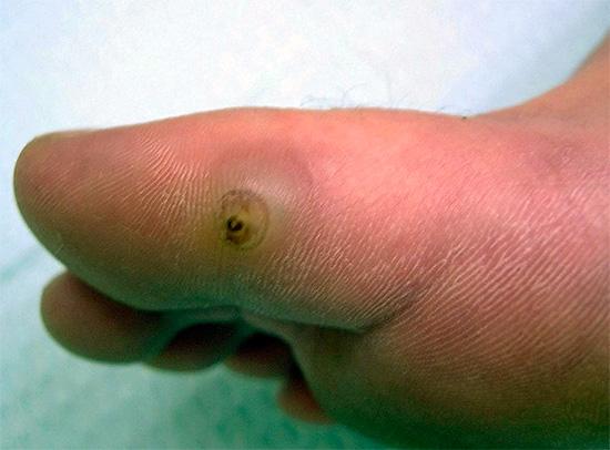 Sandflöhe können in die Haut eindringen und zu schweren und gefährlichen Entzündungen führen.