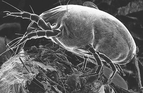 Dermatophagoides pteronyssinus (Aufnahme mit einem Rasterelektronenmikroskop).