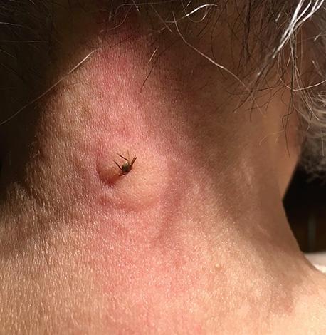 In einigen Fällen entwickelt sich eine schwere allergische Reaktion auf den Zeckenstich.
