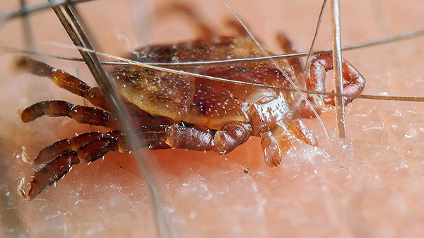 Eine Infektion ist nur möglich, wenn der Parasit beißt und wenn er gerade auf die Haut kroch - es ist sicher.