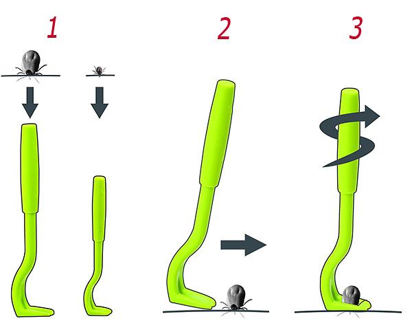 Zeigt schematisch die Schritte zum Verdrillen der Milbe aus der Haut.