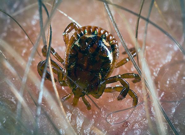 In vielen Regionen Russlands, wenn Zecken gebissen werden, kann sich eine Person mit tödlichen Infektionen anstecken ...