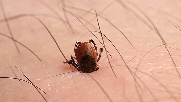 Eine Infektion kann auch dann auftreten, wenn die Zecke gerade erst geklebt hat und danach sofort entfernt wurde.